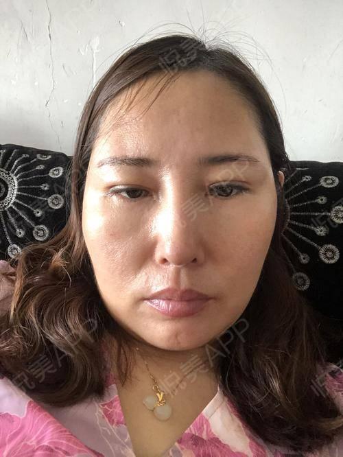 假体隆鼻修复术后25天_隆鼻失败修复术后25天_鼻部整形术后25天_温水煮红枭分享图片3