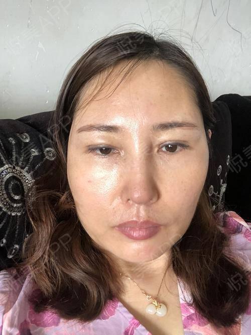 假体隆鼻修复术后25天_隆鼻失败修复术后25天_鼻部整形术后25天_温水煮红枭分享图片6