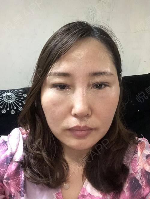 假体隆鼻修复术后25天_隆鼻失败修复术后25天_鼻部整形术后25天_温水煮红枭分享图片8