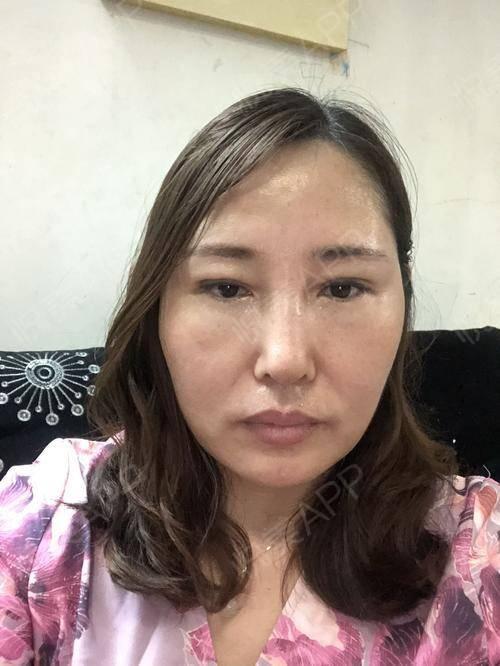 假体隆鼻修复术后25天_隆鼻失败修复术后25天_鼻部整形术后25天_温水煮红枭分享图片7