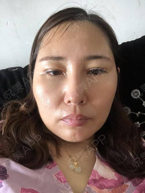 假体隆鼻修复术后25天_隆鼻失败修复术后25天_鼻部整形术后25天_温水煮红枭分享图片9