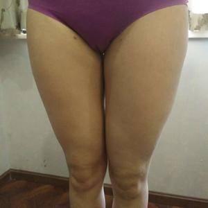 大腿吸脂恢复过程