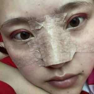 悦Mer_2251169359蜜邦医美的眼综合术后5天第3页图