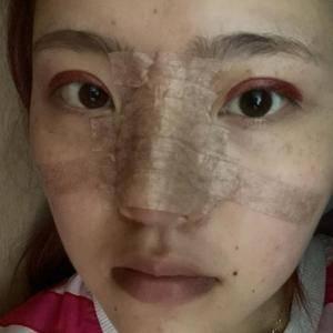 悦Mer_2251169359蜜邦医美的眼综合术后5天第1页图