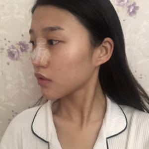 悦Mer_610652长沙美莱肋软骨隆鼻术后3天第2页图