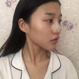 悦Mer_610652长沙美莱肋软骨隆鼻术后3天第1页图