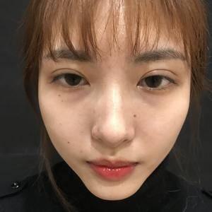 杭州薇琳超皮秒全面部祛斑+嫩肤