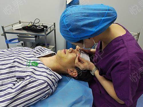 全切双眼皮术后7天_双眼皮术后7天_眼部整形术后7天_许志斌分享图片1