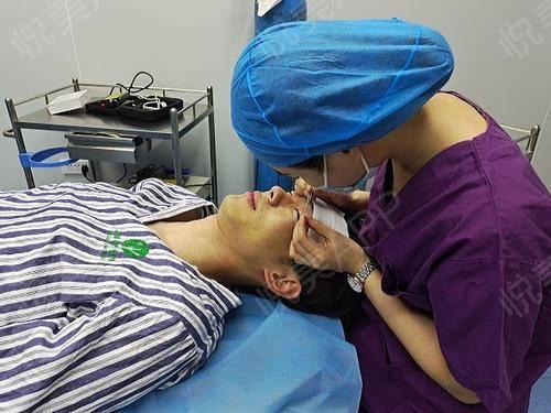 全切双眼皮术后7天_双眼皮术后7天_眼部整形术后7天_许志斌分享图片3
