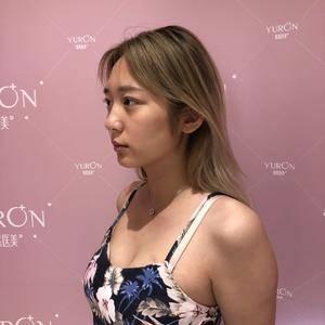 鼻综合(假体隆鼻+耳软骨)