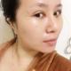 我自己本是单眼皮,我做双眼皮是为了追求更好的效果 主要还是想眼睛更大一点,去了医院,张医生首先问了我...