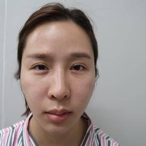 修复肋骨鼻、假体下巴、下颌缘吸脂
