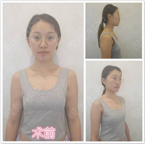 【南京美贝尔-自体脂肪隆胸】☼在生活中,似乎每个男人都喜欢胸大的女人,虽然说盯着女人的胸部看不好,可是还是会有很多男人在...