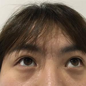 眼周胶原蛋白针