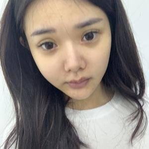 超肋鼻修复