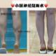 做完手术50天了,时间过得真快呀,仿佛前两天刚做完手术,现在术后快俩月了,小腿的腿围减小了1.2厘米,算...