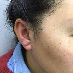 手术/激光祛疤