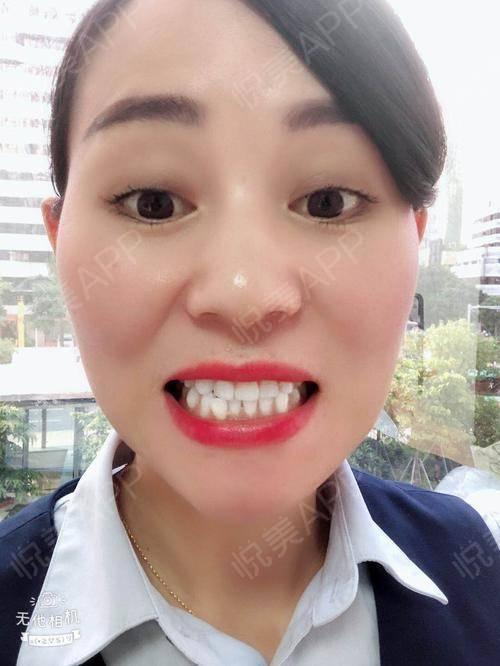 跟你们分享牙齿冷光美白过程:1,牙医先进行口腔检查,并与美白患者交流冷光美白,比对并记录美白前牙齿的颜色,可照相存档2,...
