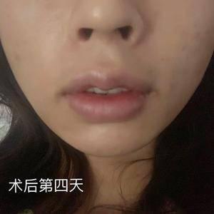 M唇有什么好?为什么那么多人都要做?