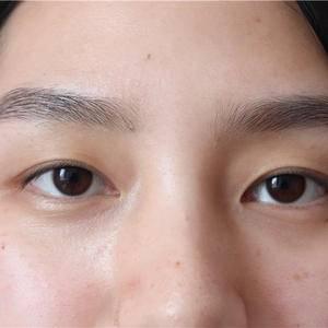 我的双眼皮日记