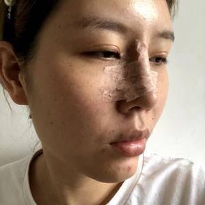 肋骨鼻的蜕变之旅