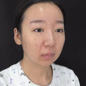 面部吸脂术后分享