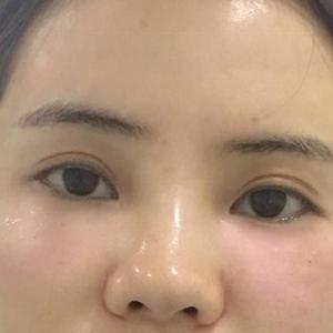 胶原蛋白注射黑眼圈