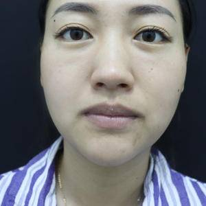 唇部手术反馈