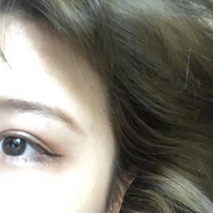 悦Mer_3194987736双眼皮手术术后242天第1页图