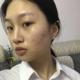 【南京华韩奇致美容医院-皮秒祛斑】这几天,脸上有点泛红,可能是房间里的灯光影响,大家可能还看不出来红...