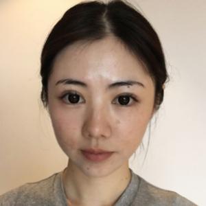 韩美整形娇兰玻尿酸(丰苹果肌
