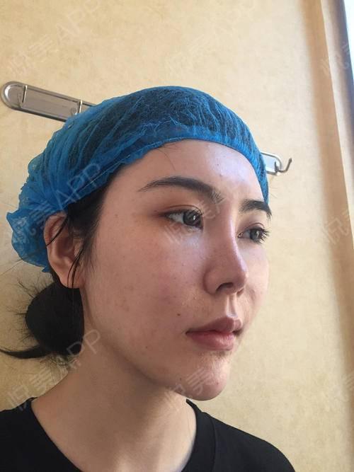 自体肋软骨隆鼻手术当天_隆鼻手术当天_鼻部整形手术当天_佳佳宇宙分享图片2