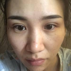 杭州薇琳初鼻半肋软骨隆鼻