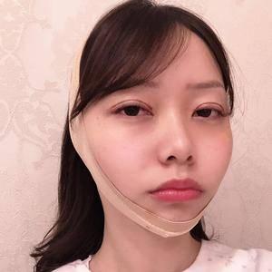 悦Mer_7589655404美贝尔   眼修复术后3天第1页图