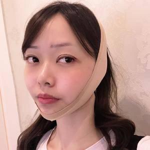 悦Mer_7589655404美贝尔   眼修复术后7天第3页图