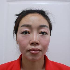 鼻综合、眼综合、假体下巴