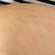 激光做完了,要养护一段时间,修复霜也还是坚持在用,停一天就感觉不顺心。妊娠纹的位置出现在大腿内外侧,...