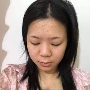 安徽韩美整形眼综合