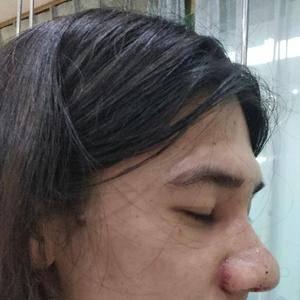 肋软骨鼻综合日记