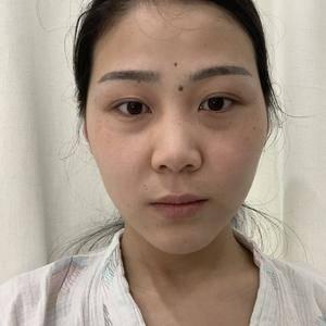 超肋鼻综合+双眼皮
