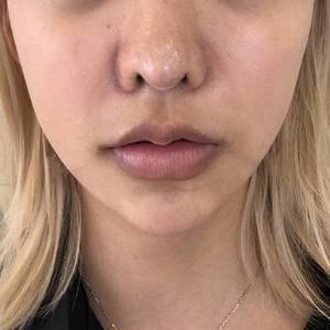 上唇m唇塑形➕嘴角上扬➕下唇塑型