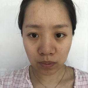 瓜子脸+肋骨鼻+曼托隆胸
