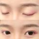 双眼皮术后如何快速恢复?