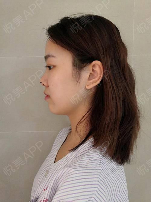 自体耳软骨隆鼻手术当天_硅胶假体隆鼻手术当天_隆鼻手术当天_鼻部整形手术当天_北北分享图片2