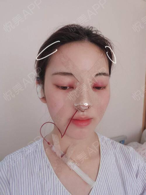 自体耳软骨隆鼻术后1天_硅胶假体隆鼻术后1天_隆鼻术后1天_鼻部整形术后1天_北北分享图片2