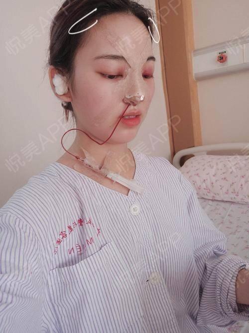 自体耳软骨隆鼻术后1天_硅胶假体隆鼻术后1天_隆鼻术后1天_鼻部整形术后1天_北北分享图片3