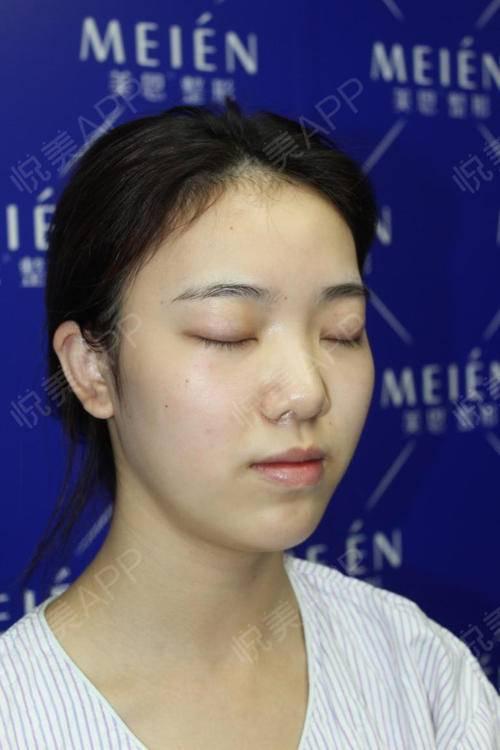 自体耳软骨隆鼻手术当天_硅胶假体隆鼻手术当天_隆鼻手术当天_鼻部整形手术当天_北北分享图片5