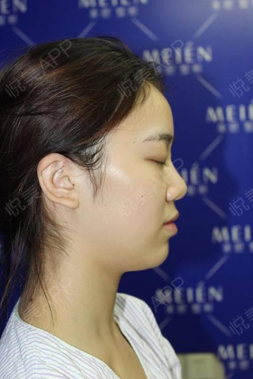 自体耳软骨隆鼻手术当天_硅胶假体隆鼻手术当天_隆鼻手术当天_鼻部整形手术当天_北北分享图片6