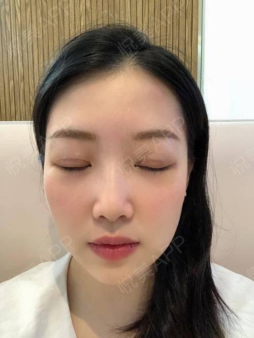 全切双眼皮术后7天_双眼皮术后7天_眼部整形术后7天_小熊饼干分享图片4