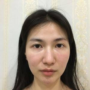 自体脂肪面部填充后,重回少女脸